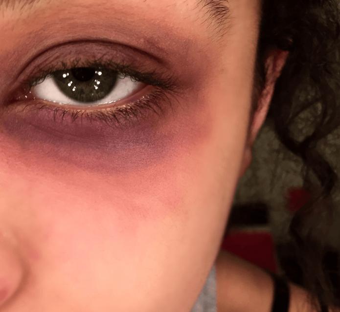 У девушки синяк под глазом